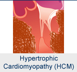 Hypertrophic Cardiomyopathy Program (HCM)