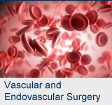 Vascular and Endovascular Surgery